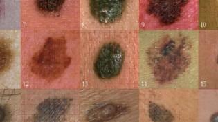 İngiltere'de Cilt kanserine yakalananların sayısında artış