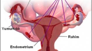 Kadın hastalıkları: Endometriozis