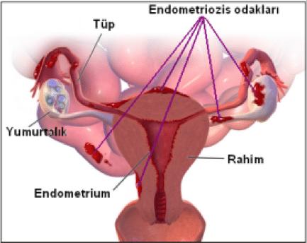 Kadın hastalıkları: Endometriozis 1