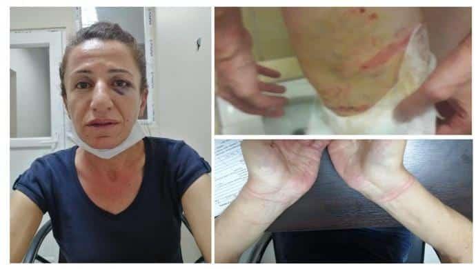 Rojbin Çetin tutuklandı